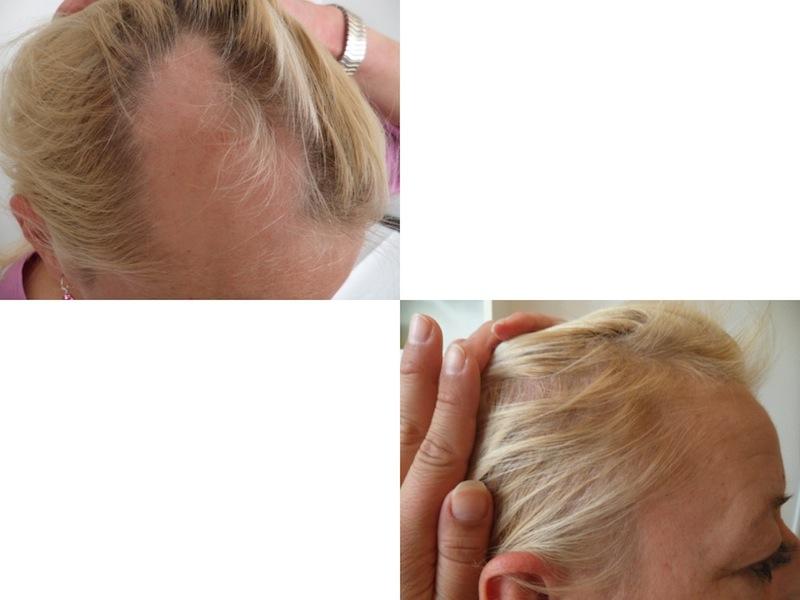 Alopecia: evaluation and treatment